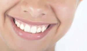 Weiße Zähne - Dank Zahnaufhellung